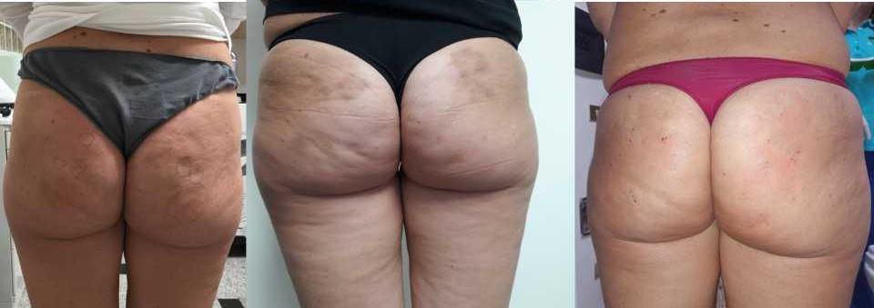 Rimozione buchi cellulite