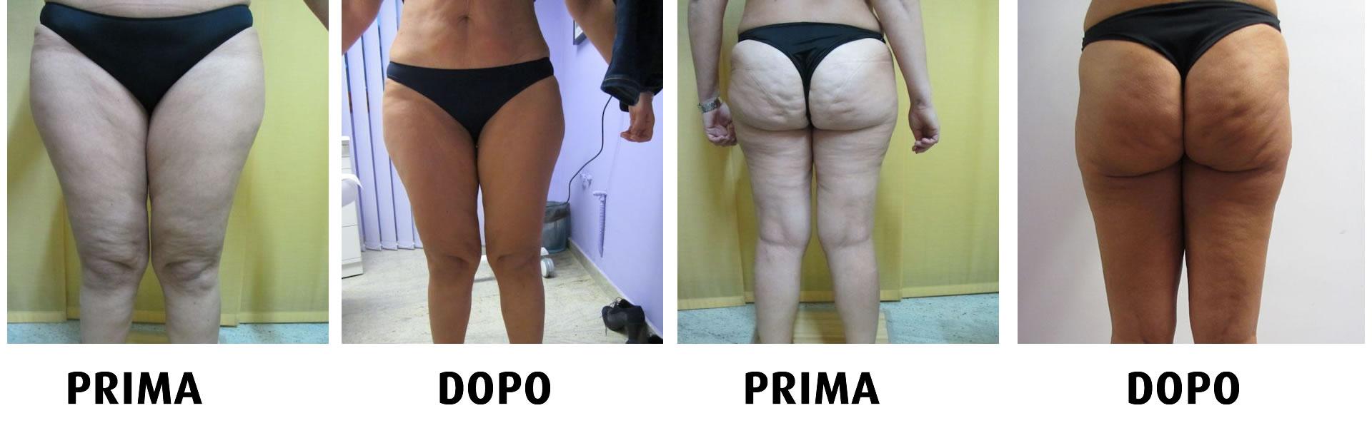 Trattamenti anticellulite, riduzione grasso localizzato a cosenza: rimozione smagliature con carbossiterapia