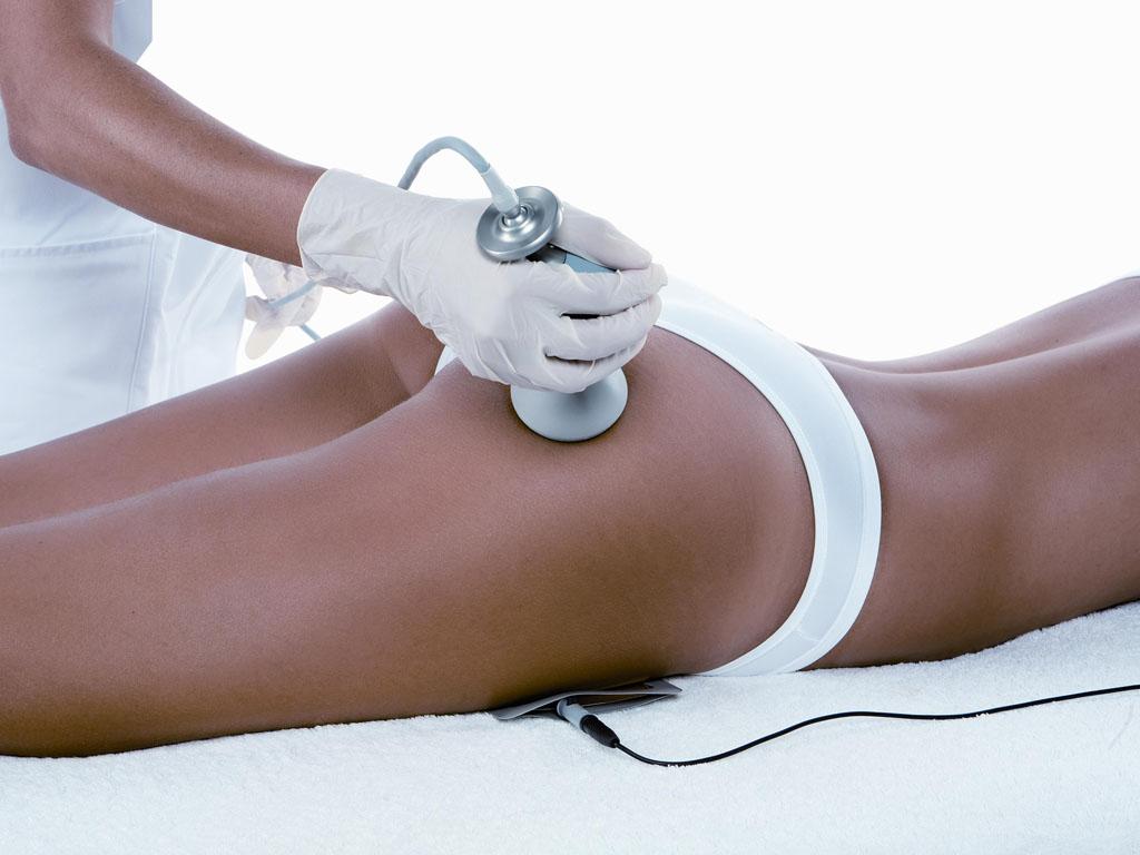 Radiofrequenza corpo trattamenti anticellulite a cosenza